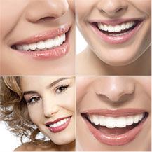 Whitening beautiful smile